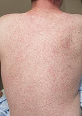 麻疹(污斑紅疹)