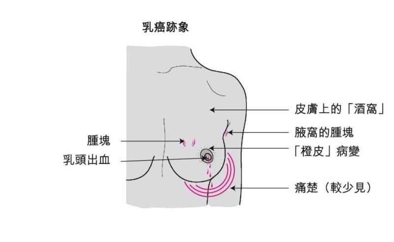 什麼是乳癌?有什麼特徵?