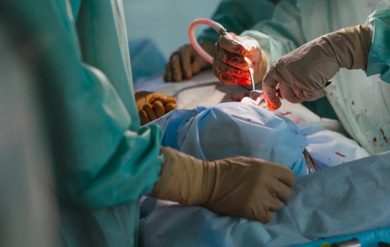 什麼是手術費?