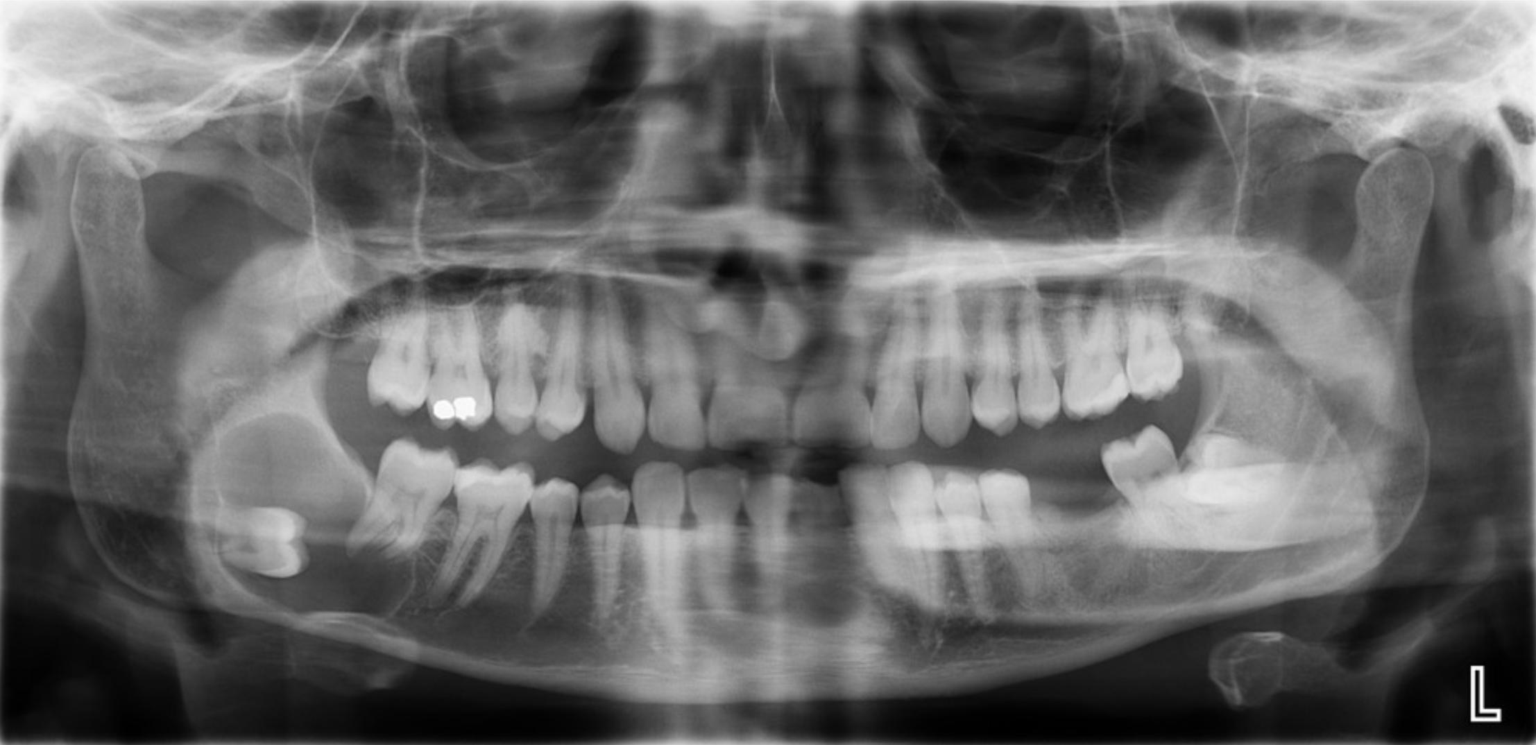 齒源性囊腫