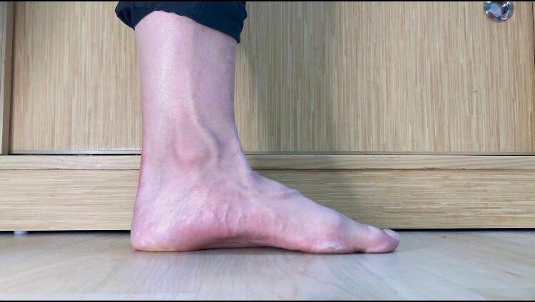 縮足後 (注意腳掌長和足弓高度的變化)