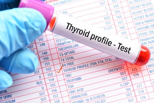 Thyroid Function Profile